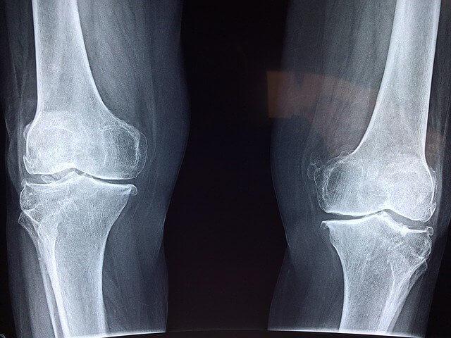 熊本市中央区上通りの整体院ハレルが教える膝の内側の痛みについて